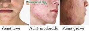 acné leve moderado y grave