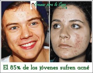 chicos jóvenes con acne