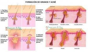dibujo granos-y-acne-acné