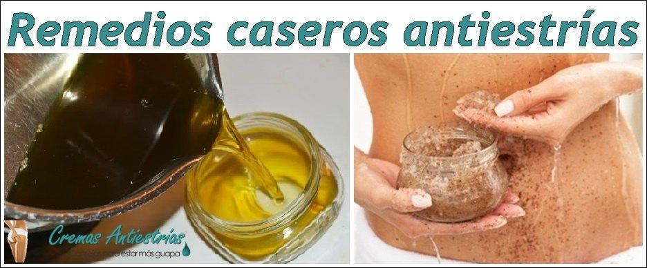 remedio-naturales-y-caseros-antiestrias