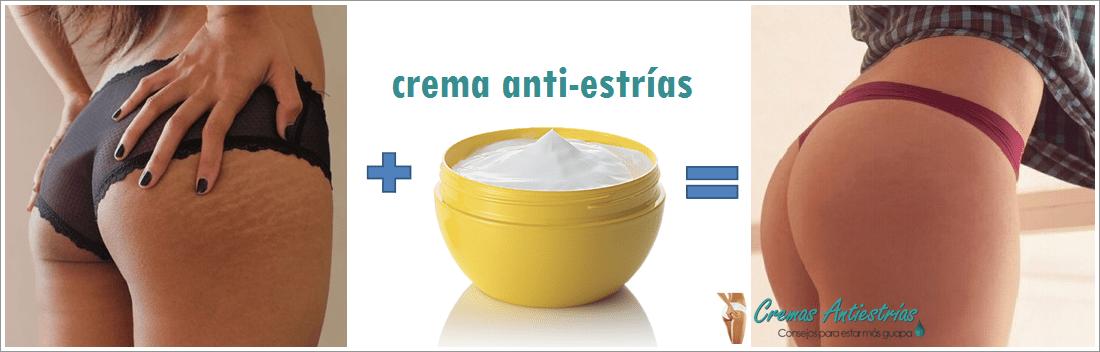 estrias-en-nalgas-y-gluteos-eliminado-con-crema-antiestrias